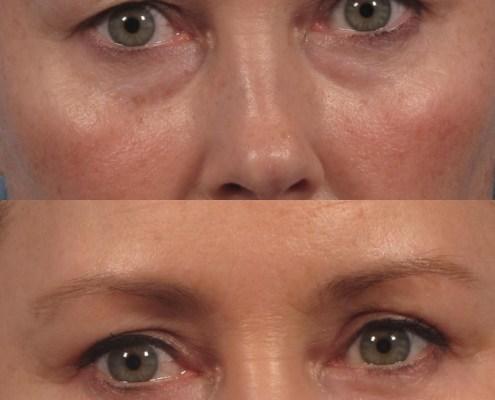 under eye bag remove nyc