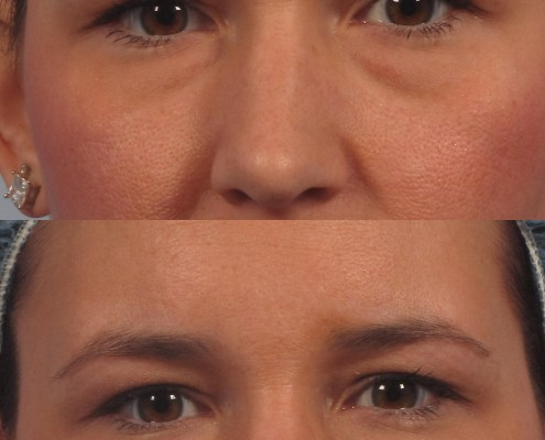 eye bag filler treatment new york