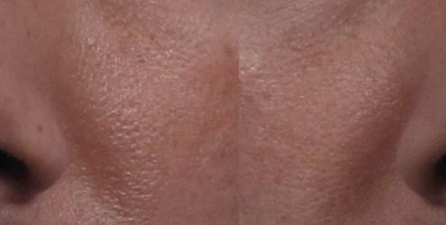 filler correction rhinoplasty nyc
