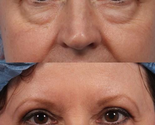eye bags surgery ny