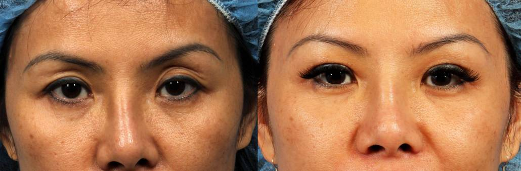 eyelid fat grafting