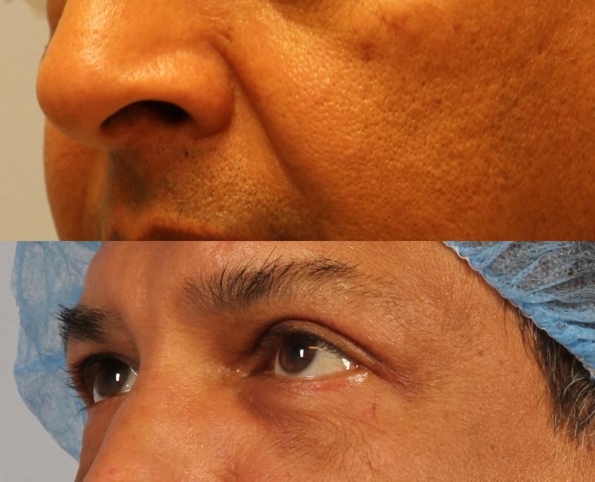 lower eyelid lift man