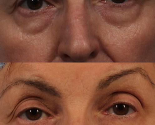 lower eyelid surgery ny