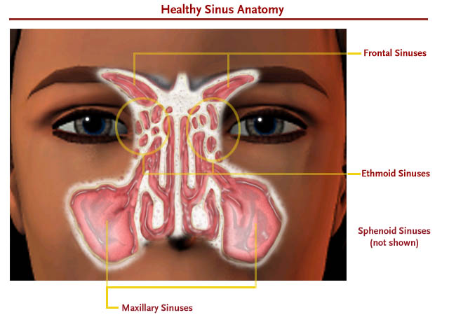 Balloon Sinuplasty Non Invasive Treatment For Sinusitis