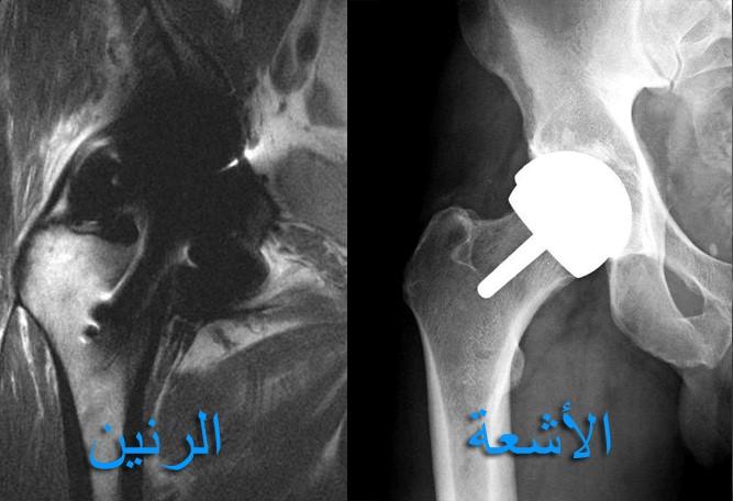 https://hip-knee.com/wp-content/uploads/2013/10/MRIartifact.jpg