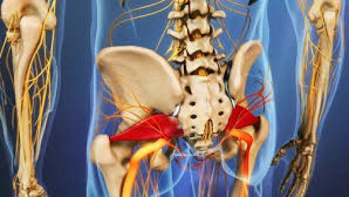متلازمة العضلة الكمثري