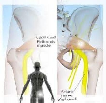 متلازمة العضلة الكمثرية والعصب الوركي