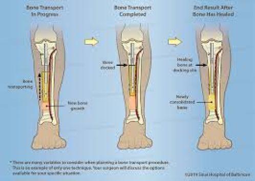 رسم توضيحي لقصبة الساق يُظهر الخطوات الثلاث الأخيرة في نقل العظام باستخدام مسمار داخلي - نقل العظم قيد التقدم ، ونقل العظم الكامل ، والنتيجة النهائية بعد التئام العظم