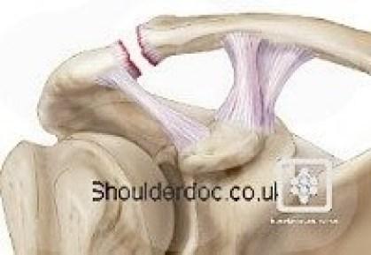 https://www.shoulderdoc.co.uk/images/uploaded/shoulderdoc_rockwood_2.jpg