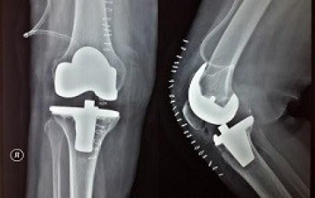 احتكاك و خشونة الركبة: العلاج الجراحي - مركز الدكتور اسعد احمد لجراحة المفاصل والطب الرياضي