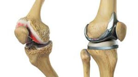 الرسوم التوضيحية لالتهاب المفاصل الحاد واستبدال الركبة