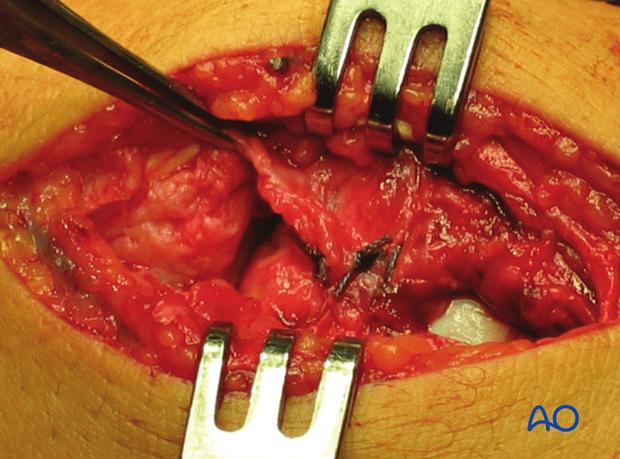 Carpus – Complete dislocation of the luante – ORIF – Open reduction internal fixation
