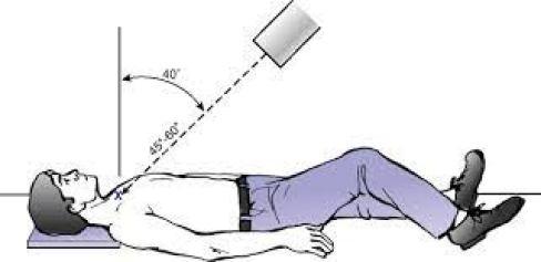 التوضيح والأشعة السينية للخلع القصي الترقوي الخلفي