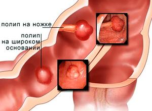 Коричневые выделения после осмотра гинеколога при беременности. После осмотра у гинеколога кровянистые выделения: возможные причины После визита к гинекологу пошла кровь