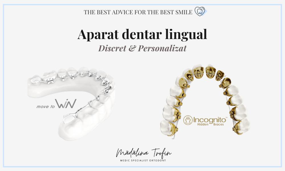 Aparat dentar lingual – WIN, Incognito