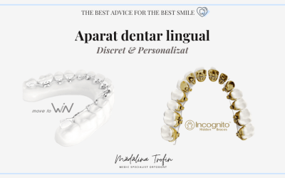 Aparat dentar lingual – WIN, Incognito