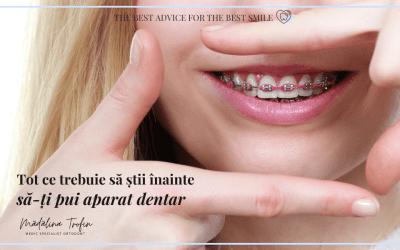 Tot ce trebuie să știi înainte să-ți pui aparat dentar