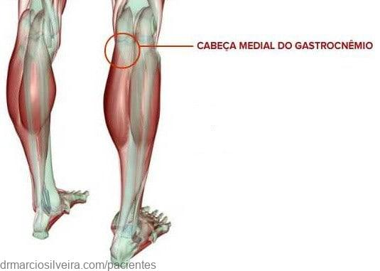 gastrocnêmio medial