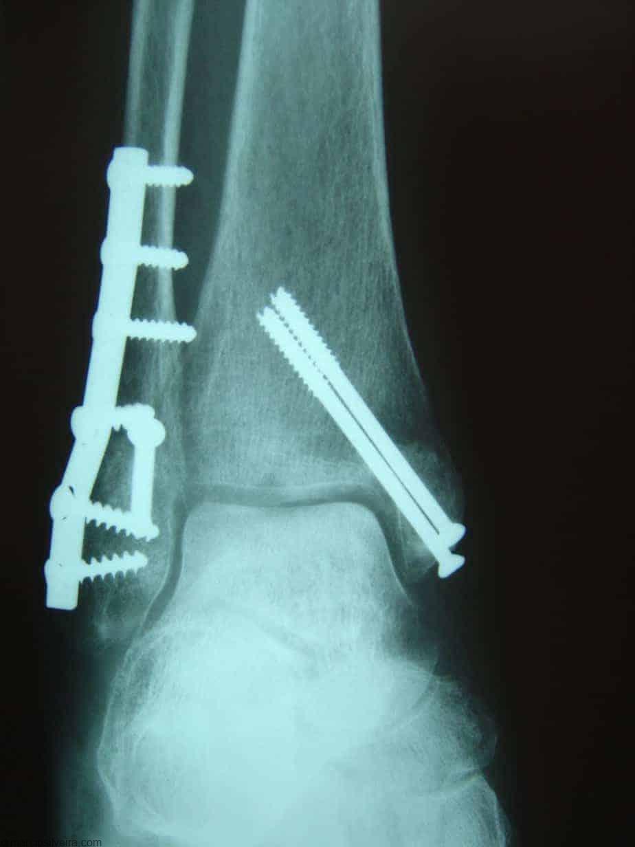 Tratamento para fraturas de tornozelo rx