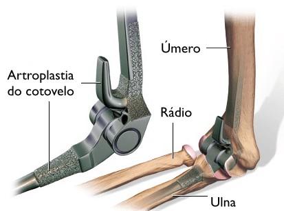 artroplastia para artrose no cotovelo