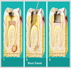 Root-Canal1