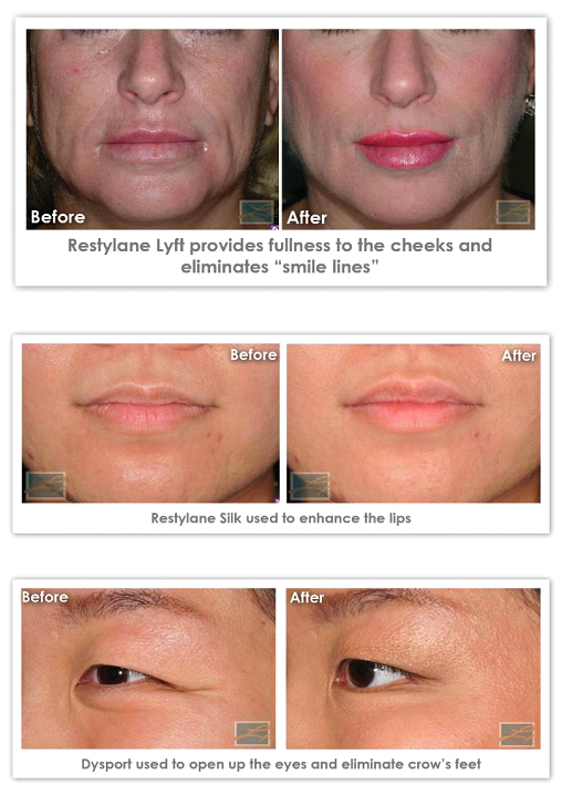 Save up to $575 on Full Facial Rejuvenation