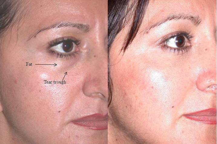 fat repositioning in lower eyelid blepharoplasty cosmetic eyelid