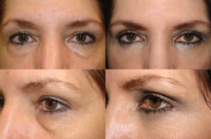 Lower Blepharoplasty Beverly Hills CA