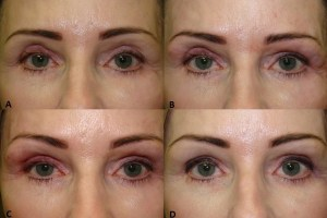 Blepharoplasty  remedied with filler - before & after.