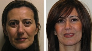 Facial Filler Injections Gallery