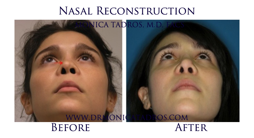 Nasal-Reconstruction-NJ-before-after-photo-003