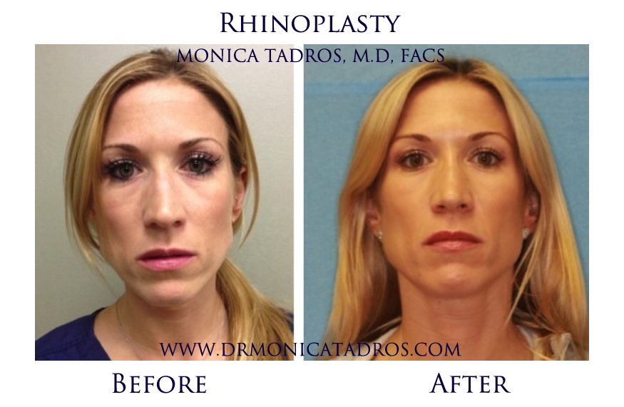 Does Insurance Cover Rhinoplasty