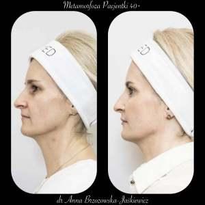Metamorfoza pacjentki w wieku 40+