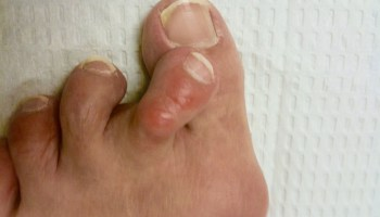 How long does it take you to heal after bunion surgery?