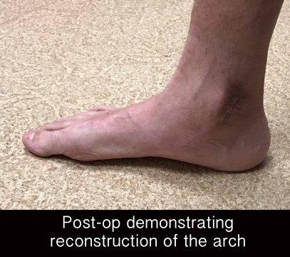 campitelli-flatfoot-akron-3