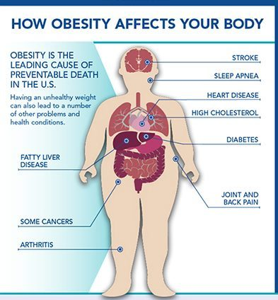 problems due to obesity - excess body weight