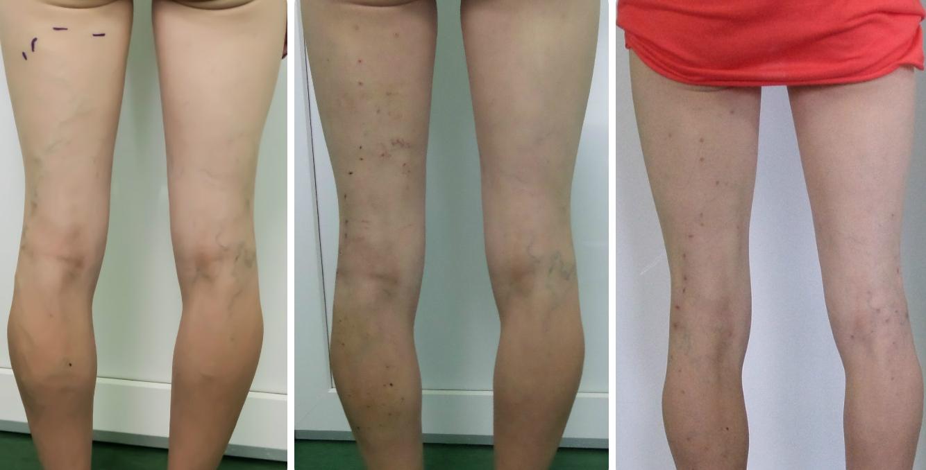 varicoză și ochiuri pe picioare