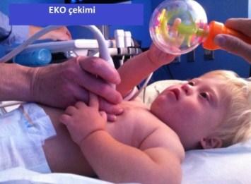 (Eko) Ekokardiyografi