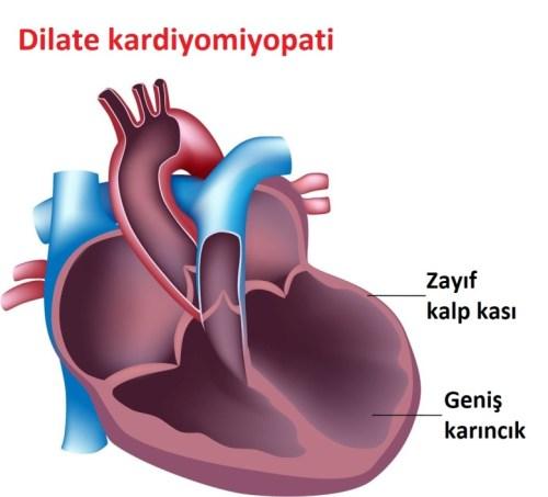 Sonradan Oluşan Kalp Hastalıkları