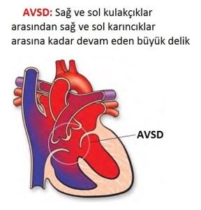 Kalp Delikliği AVSD
