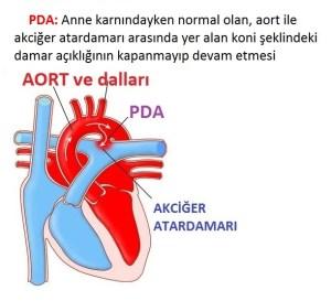 Kalp Delikliği PDA