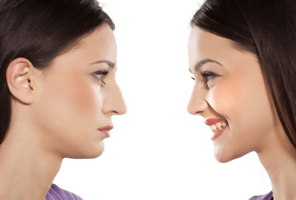 Rinoplastia estruturada ou redutora – qual é melhor?