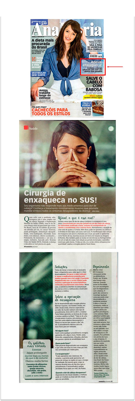 Matéria na Revista Ana Maria - Cirurgia de Enxaqueca