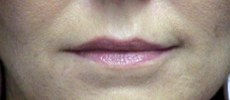 Lip Augmentation Before Picture