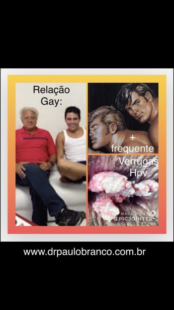 verrugas de hpv no relação entre homens gays.