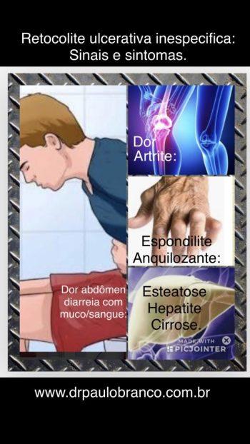dor e perda de muco sao os principais sintomas na retocolite ulcerativa inespecifica.