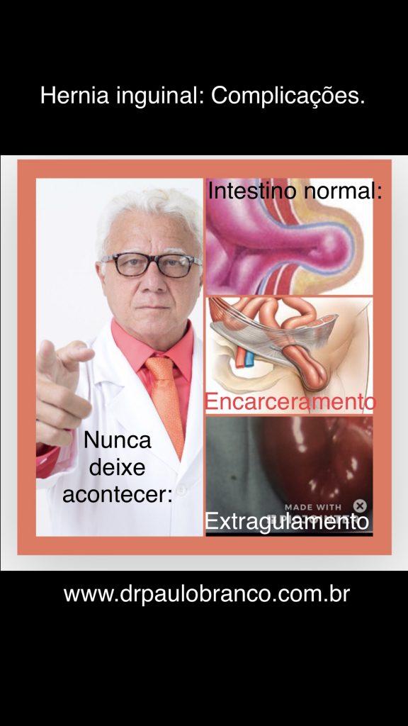 hernia inguinal estrangulada