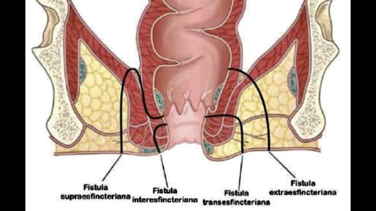 fistula perianal saiba a anatomia e os tipos.