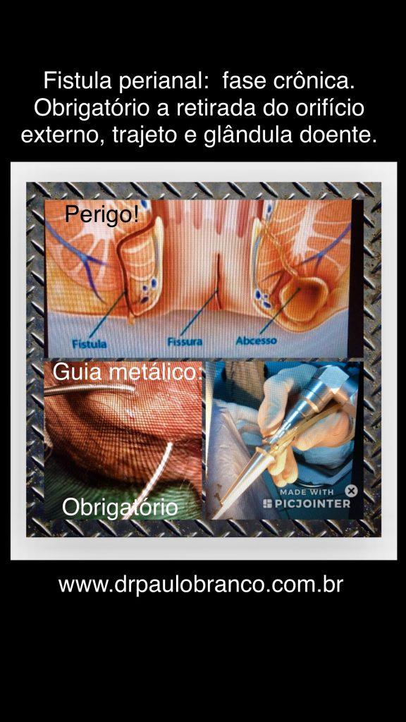 fistula perianal tratamento com laser sem internação