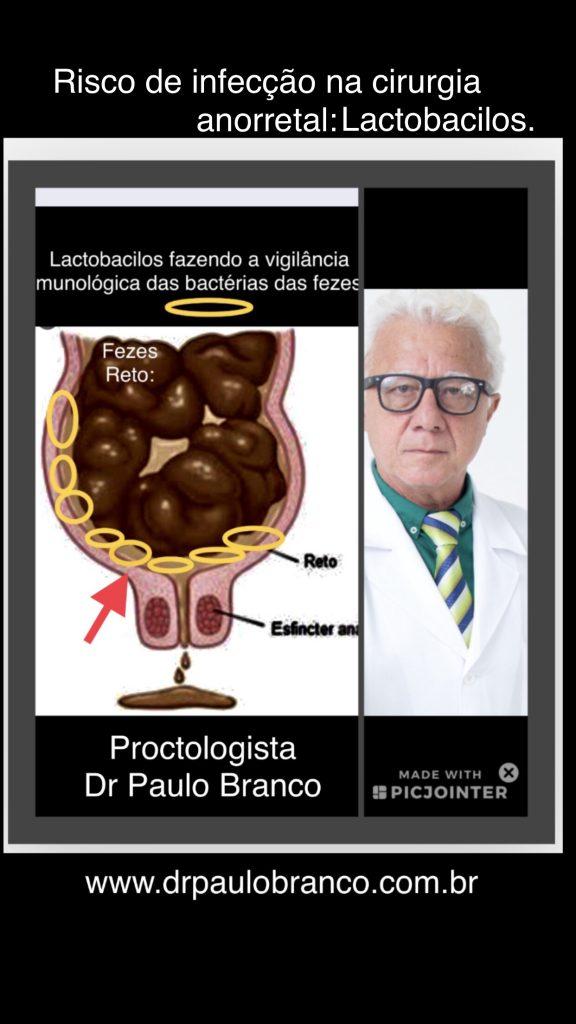 lactobacilos e o risco de infecção na cirurgia anorrertal